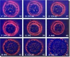 Gambar sebuah sel kanker hancur dengan menggunakan frekuensi suara [Rahasia penyembuhan dengan Al-Quran (ruqyah) berdasarkan penelitian ilmiah]